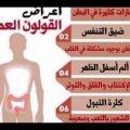 اعراض القولون العصبي , اعراض الاصابه بمرض القولون