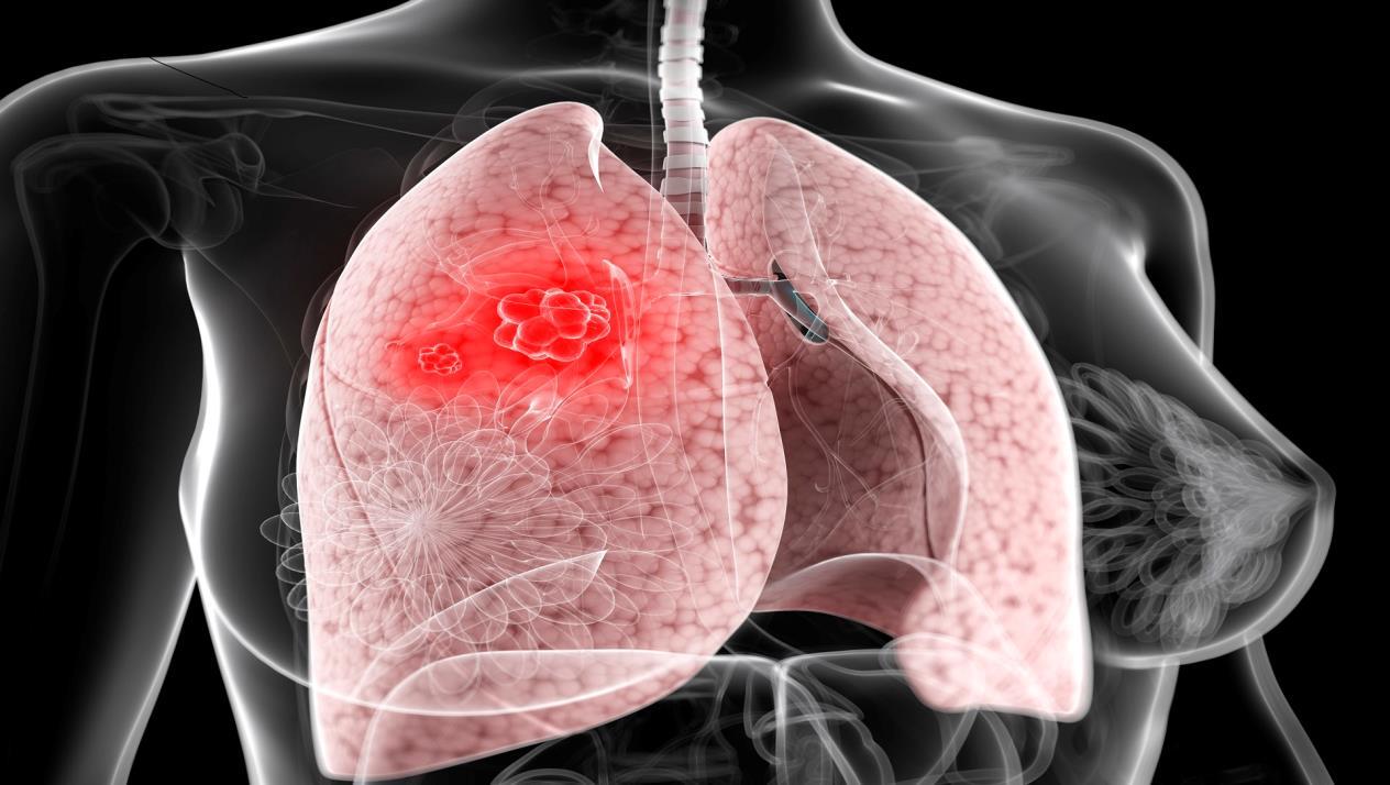 نتيجة بحث الصور عن صور اعراض مرض السرطان