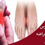 مرض النقرس , اعراض مرض النقرس واسبابه