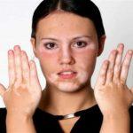 مرض البهاق , مرض البهاق وشكله وطرق علاجه
