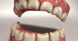 صورة طقم اسنان , كيفية تنظيف اطقم الاسنان