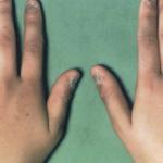 مرض اديسون , ماهى اعراض داء اديسون