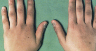 صور مرض اديسون , ماهى اعراض داء اديسون