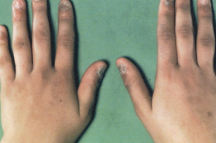 صورة مرض اديسون , ماهى اعراض داء اديسون