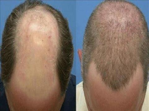 صور علاج تساقط الشعر للرجال , طريقه مجربه لتساقط الشعر