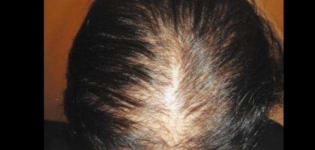 صورة شعري خفيف , علاج الشعر الخفيف والمتقصف