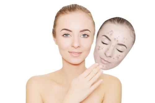 صورة ازالة حبوب الوجه , التخلص من حبوب الوجه وازلتها
