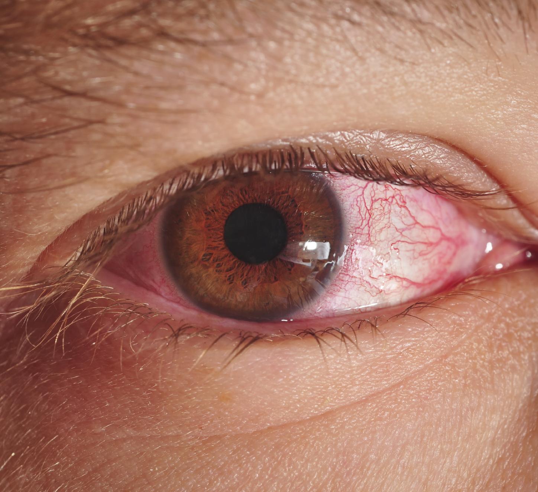 صورة علاج حساسية العين , كيف اتخلص من حساسية العين نهائيا