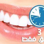 كيفية تبييض الاسنان , طرق وخلطات لتبييض الاسنان