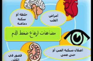 صورة اسباب ارتفاع ضغط الدم , ما الذي يؤدي لارتفاع ضغط الدم ؟