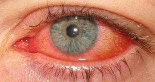 صور العين الحمراء , سبب احمرار العين