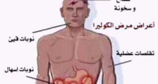 صور اعراض مرض الكوليرا , ما هي اعراض الاصابه بالكوليرا