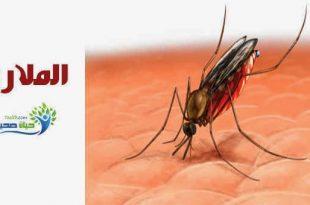 صورة مرض الملاريا , ما هو مرض الملاريا