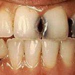 علاج تسوس الاسنان , ما هو علاج التسوس