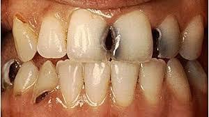 صور علاج تسوس الاسنان , ما هو علاج التسوس