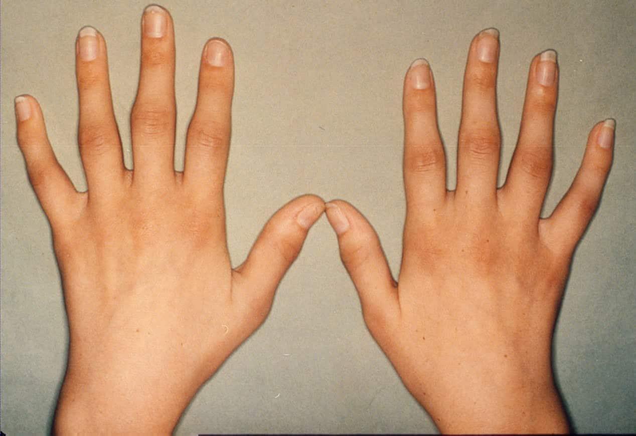 صورة اعراض الروماتيزم , مشاكل التهاب المفاصل