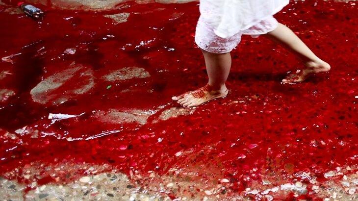 صورة معنى الدم في الحلم , ما تفسير رؤيتى للدماء اثناء نومى