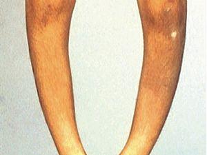 صورة مرض الكساح , اكثر الامراض الما