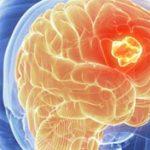 اعراض سرطان الدماغ , مؤشرات تدل على ورم فى المخ