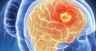 صور اعراض سرطان الدماغ , مؤشرات تدل على ورم فى المخ