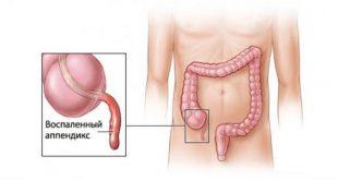 صورة اعراض الزائدة الدودية , دلالات التهاب الزايده
