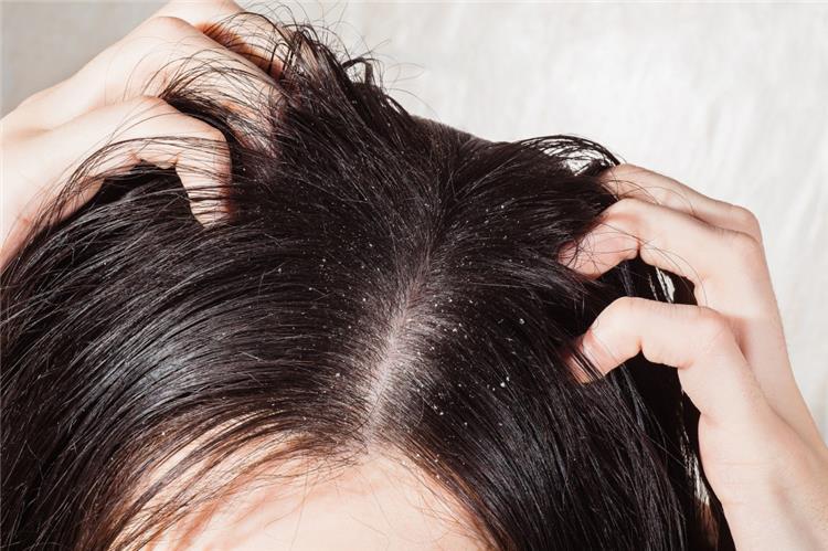 صورة علاج القشرة المزمنة , تخلصى نهائيا من مشاكل قشرة الشعر