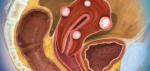 صورة اورام الرحم الليفية , اكتشاف اورام الرحم