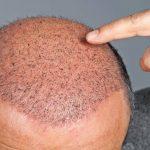 عملية زراعة الشعر , زراعه الشعر عمليه تجميليه تحسن مظهرك