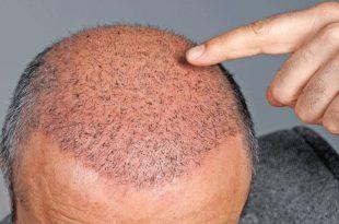 صورة عملية زراعة الشعر , زراعه الشعر عمليه تجميليه تحسن مظهرك
