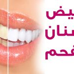 خلطات تبيض الاسنان , اسنانك هتبقي ناصعه البياض ابتسم بثقه