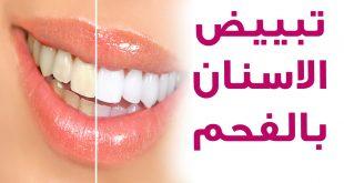 صورة خلطات تبيض الاسنان , اسنانك هتبقي ناصعه البياض ابتسم بثقه