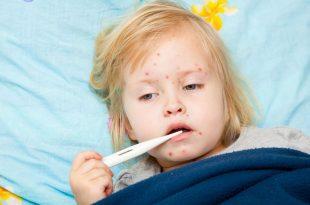 صورة مرض الجدري , اعراض مرض الجدري والوقاية منه