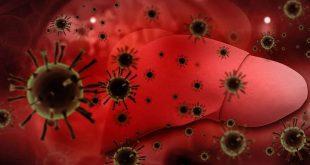 صورة مرض الكبد الوبائي , اعراض واسباب التهاب الكبد الوبائي