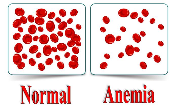 صورة علاج فقر الدم , القضاء على الانيميا