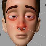 اعراض حساسية الانف , اشياء مزمنة لا تتجاهلها