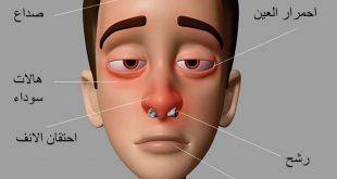صورة اعراض حساسية الانف , اشياء مزمنة لا تتجاهلها