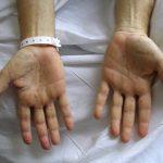 مرض الزهري , اسباب واعراض وعلاج مرض الزهري