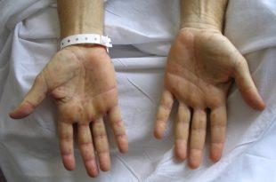 صورة مرض الزهري , اسباب واعراض وعلاج مرض الزهري