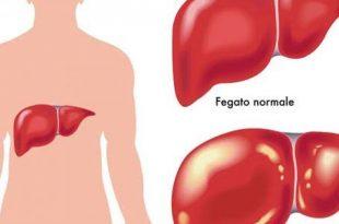 صورة اعراض مرض الكبد , كيف تعرف اذا كان عندك مرض الكبد
